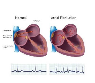 Atrial fibrillation picture